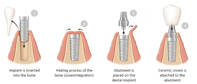 Four phases of the dental implant process, including insertion, healing, abutment, and crown