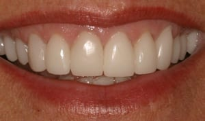 After metal-free crowns photo of natural-looking ceramic crowns