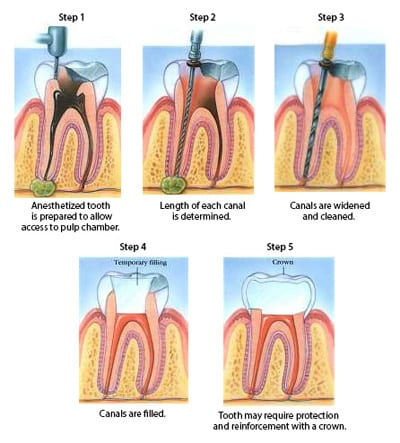 Diagram of five phases of root canal treatment, including numbing the tooth, determining canal length, widening canals, filling canals, and placing a crown