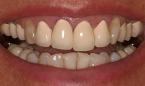 Before all-porcelain crowns smile photo of dark crowns fused to metal