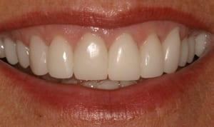 After porcelain crowns close-up smile photo