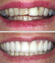 Before-and-after zirconia crowns smile photos