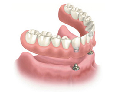 Diagram of a snap-on denture as an affordable dental implant option