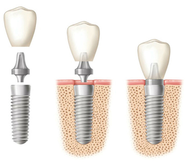A single dental implant in three phases - all three components, implant in the bone with abutment and crown above it, an a complete implant.