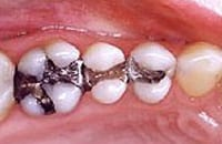 Lower molar teeth with amalgam fillings, which contain mercury