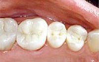 Lower molar teeth with amalgam fillings replaced by a mercury-free dentist