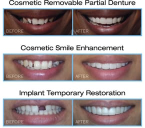 Three sets of Snap-On-Smile before-and-after photos